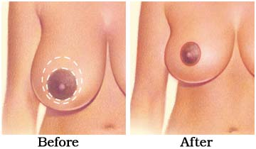 breast_reduction_surgery_1